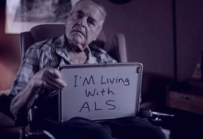 درمان بیماری ALS, تشخیص بیماری ALS