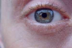 گلوکوم, بیماریهای چشمی
