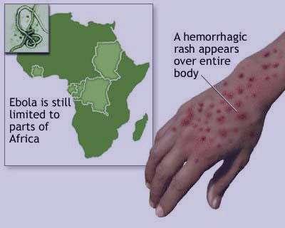 نشانه های بیماری ابولا,تشخیص بیماری ابولا