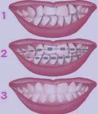 دندانپزشکی, نگهدارنده ارتودنسی, اورتودنسی