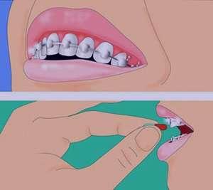 التهاب لثه ها, ارتودنسی, نظم دادن به دندان ها
