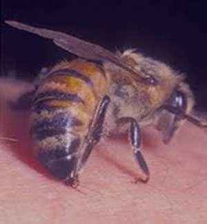 زنبورردگی,زنبورگزیدگی