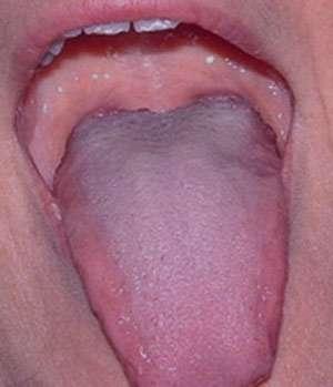 بیماریهای زبان, سندرم داون