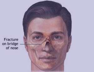 آناتومی بینی,آناتومی کاربردی بینی
