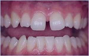 درمان دندان های فاصله دار,ترمیم دندانهای جلویی