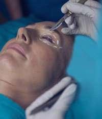 جراحی پلاستیک پلک, شلی پوست, افتادگی پلک ها