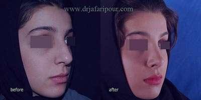 جراحی زیبایی بینی ,بیماری جراحی زیبایی بینی,جراحی زیبایی بینی در بارداری,علائم جراحی زیبایی بینی