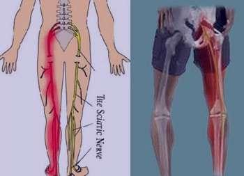 کمر درد , کمر درد سیاتیک , کمر درد بعد از انزال , کمر درد شدید , درمان کمردرد , ورزش و داروی گیاهی برای کمر درد