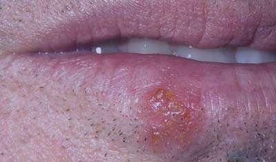 بیماری های شایع دهان,بیماری های لثه,تب خال