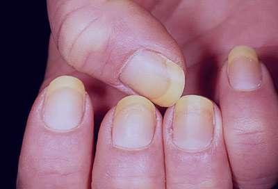 تشخیص بیماری, تغییر رنگ ناخن ها