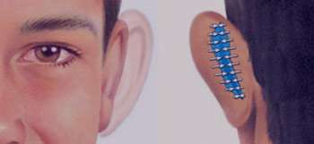 جراحی پلاستیک گوش, جراحی پلاستیک, گوشهای برجسته