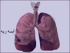 آبسه ریه , عفونت ریه , عامل آبسه ریه