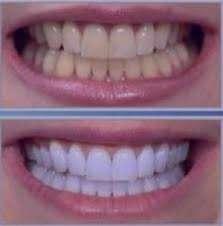 تیرگی دندان ها, راههای سفید کردن دندان ها