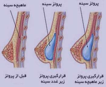 جراحی پروتز سینه, بزرگ کردن سینه, جراحی زیبایی