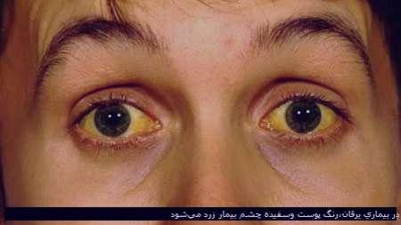 علت زردی صورت+درمان زردی صورت نوزاد