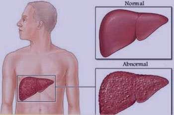 کبد,بیماریهای کبدی,پیشگیری از بیماریهای کبدی