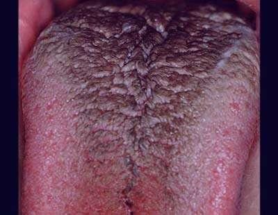 بیماری های شایع دهان,بیماری های لثه,پرزهای سیاه بر روی زبان