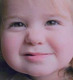 دندان قروچه در کودکان,عوارض دندان قروچه