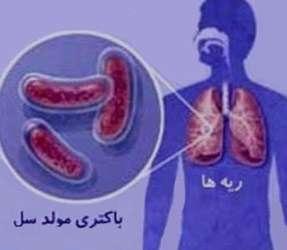 کنترل بیماری سل, عامل بیماری سل, عفونت سل