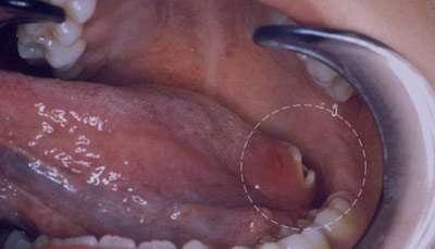 بیماری های شایع دهان,بیماری های لثه,سرطان دهان