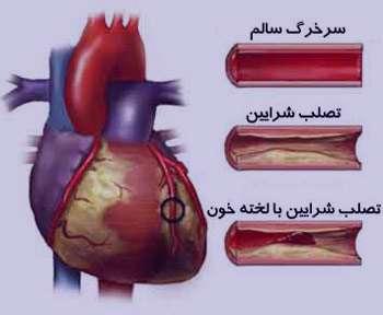 سکته مغزی,بیماریهای قلبی و عروقی,علل ایجاد تصلب شرایین