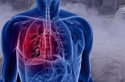 سیلیکوزیس,بیماری سیلیکوزیس ,علائم سیلیکوزیس