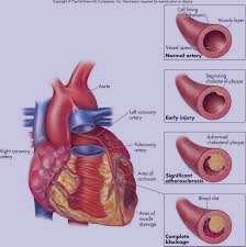 فشار خون بالا،علائم بیماری تصلب شرایین