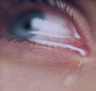 بیماریهای چشمی, آب سياه چشم