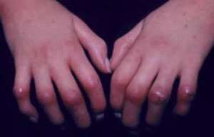 اسکلرودرمی چیست, اسکلرودرمی, بیماریهای خودایمنی