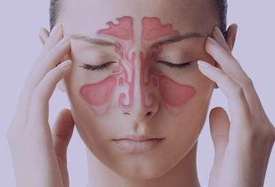 سینوزیت قارچی, درمان سینوزیت