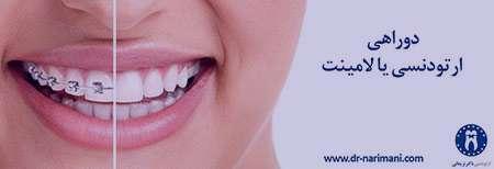 لامینت,خنده زیبا,ترمیم دندان