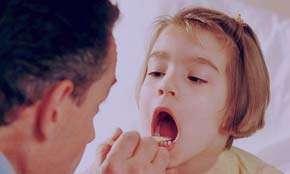 درمان گلودرد, علائم گلو درد چرکی