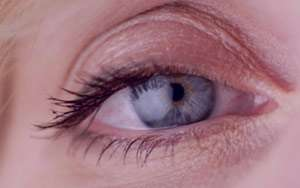 آبریزش چشم , آبریزش چشم نوزاد , آبریزش چشم در سرماخوردگی ، درمان آبریزش چشم