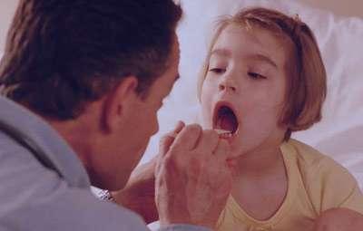 عفونت لوزه, درمان لوزه سوم