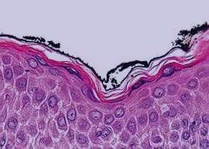 انواع حساسيتهاي پوستي, بیماری پوستی