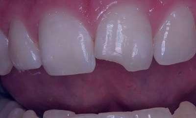 بیماری های شایع دهان,بیماری های لثه,خرد شدن دندان ها