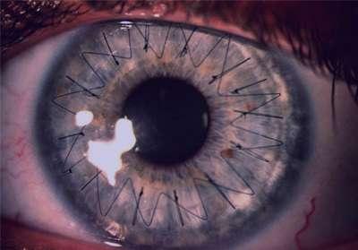کدر شدن قرنیه, بیماریهای چشمی,پیوند قرنیه