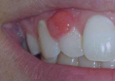 آبسه دندان,ابسه دندان