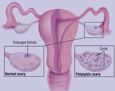 درمان بیماریهای تخمدان, بیماری PCO