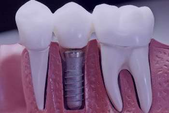 مراحل ایمپلنت دندان, ایمپلنت کامل دندان
