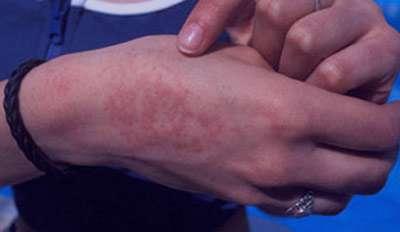 جلوگیری از عرقسوز شدن, درمان پوست عرق سوز شده