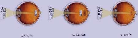 مشکلات چشمی , عیوب انکساری چشم