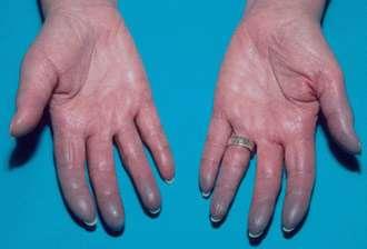 کلسترول خون , سردی دست و پا , درمان سردی دست و پا