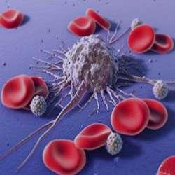 علايم لوسمي, سرطان خون, بيماري خون و مغز استخوان