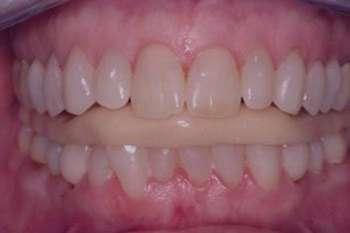 علل دندان قروچه, علائم دندان قروچه