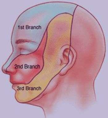 بیماری درد عصب سه قلو , علل درد عصب سه قلو