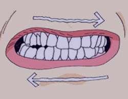 دندان قروچه, علل دندان قروچه
