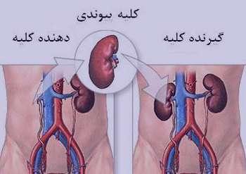 ناراحتی های کلیوی, درمان بیماری مزمن کلیه