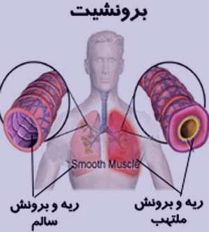 بهبود برونشیت, درمان برونشیت, عفونت میکروبی