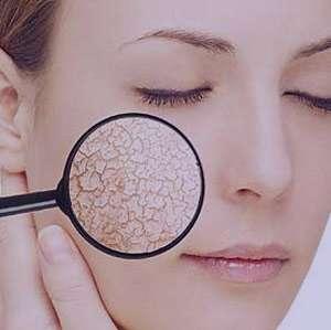 ضایعات پوستی, بیماری های کبدی